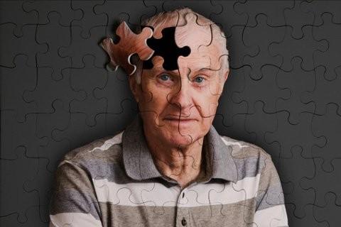 Có một loại gene có chức năng kiểm soát tốc độ lão hóa của não bộ - Ảnh minh họa